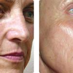 Rejuvenecimiento de la piel con el protocolo Laser360 (combinación de tecnologías AFT para lesiones vasculares y pigmentadas, ST para tensado de la piel y Pixel para resurfacing fraccional).  Imágenes cortesía: Dr. Rick Jackson, Ashbrook Aesthetics, Vancouver, WA