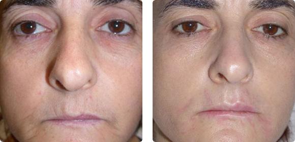 Rejuvenecimiento de la piel AFT. Resultados después de 5 sesiones con el cabezal AFT 570 SR. 15-17 J/cm2 @ 12 mseg. Imágenes cortesía: Dr. E. Follador, Dr. F. Marini, Dr. D. D'angelo. Clínica Skin Laser, Pescara, Italia.