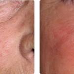 Telangectasia facial: resultados tras 1 sesión, combinando el láser 1064 LP Nd:YAG y la luz pulsada AFT 540. Imágenes cortesía: Dr. Scherer, Renaissance Clinic, Estocolmo.