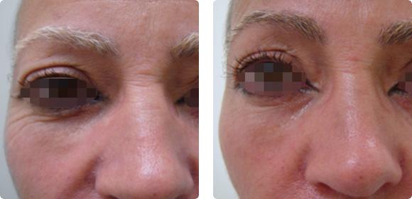 Supertensado y mejora de la calidad de la piel (rejuvenecimiento fraccional no ablativo): resultados 3 sesiones con Pixel Q-Switched. Imágenes cortesía: Dr. Kee Lee Tan, Australia