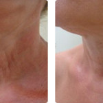 Supertensado y mejora de la calidad de la piel (rejuvenecimiento fraccional no ablativo). Imágenes cortesía: Dr. Kee Lee Tan, Australia