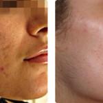Mejora de cicatrices de acné y textura de la piel con iPIXEL Er:YAG. Imágenes cortesía: Dr. Scherer, Renaissance Clinic, Estocolmo.