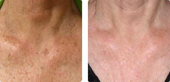 Laser360 en cuello y escote.  Imágenes cortesía: Dr. BCK Patel.