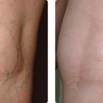 Tratamiento de venas y varices en piernas con Cooled LP Nd:YAG 1064. Imágenes cortesía: Dr. Nilda Barman y Dr. Salvador Abdo