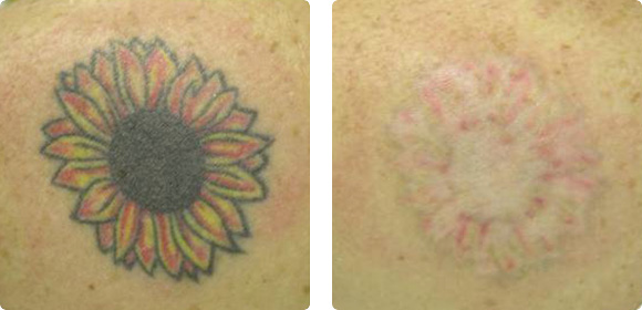 Tatuajes con Q-Switched Nd:YAG 1064. Imágenes cortesía: Prof. Arie Orenstein, M.D. Sheba Medical Center, Israel