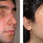 Restauración pigmento con UV. Imágenes cortesía: Dr. Larralde, M., Argentina