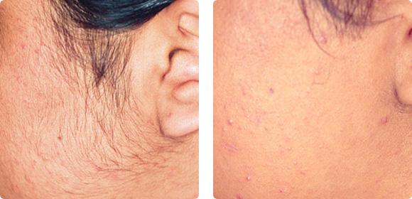 Depilación con luz pulsada intensa AFT. Mujer, tipo de piel III. 3 meses después de 4 sesiones. Cabezal AFT HR 650 18 J/cm2 @ 30 mseg.