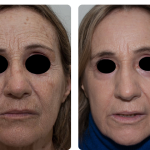 Cortesía: Dr. Guillermo Badaracco, Dermatología, Argentina.