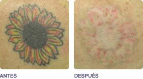 eliminacion_de_tatuajes_2