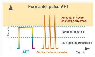 Forma-del-pulso-tecnologia-luz-aft