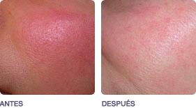 lesiones_vasculares_pigmentadas_2