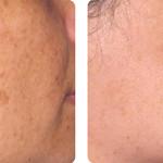Rejuvenecimiento facial y eliminación de lesiones pigmentadas. Imagen cortesía Departamento Clínico Alma Lasers