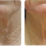 Rejuvenecimiento área cuello. Imagen cortesía Departamento Clínico Alma Lasers