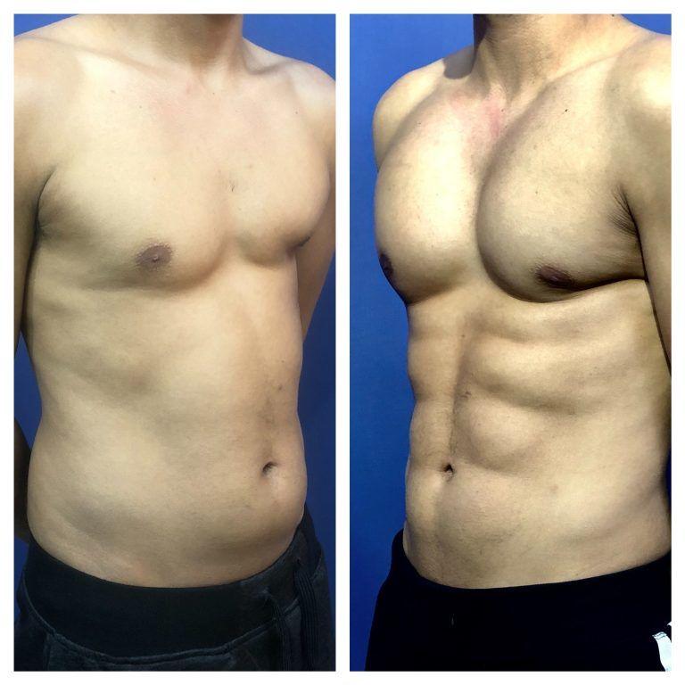 Antes y despúes tratamiento abdominal