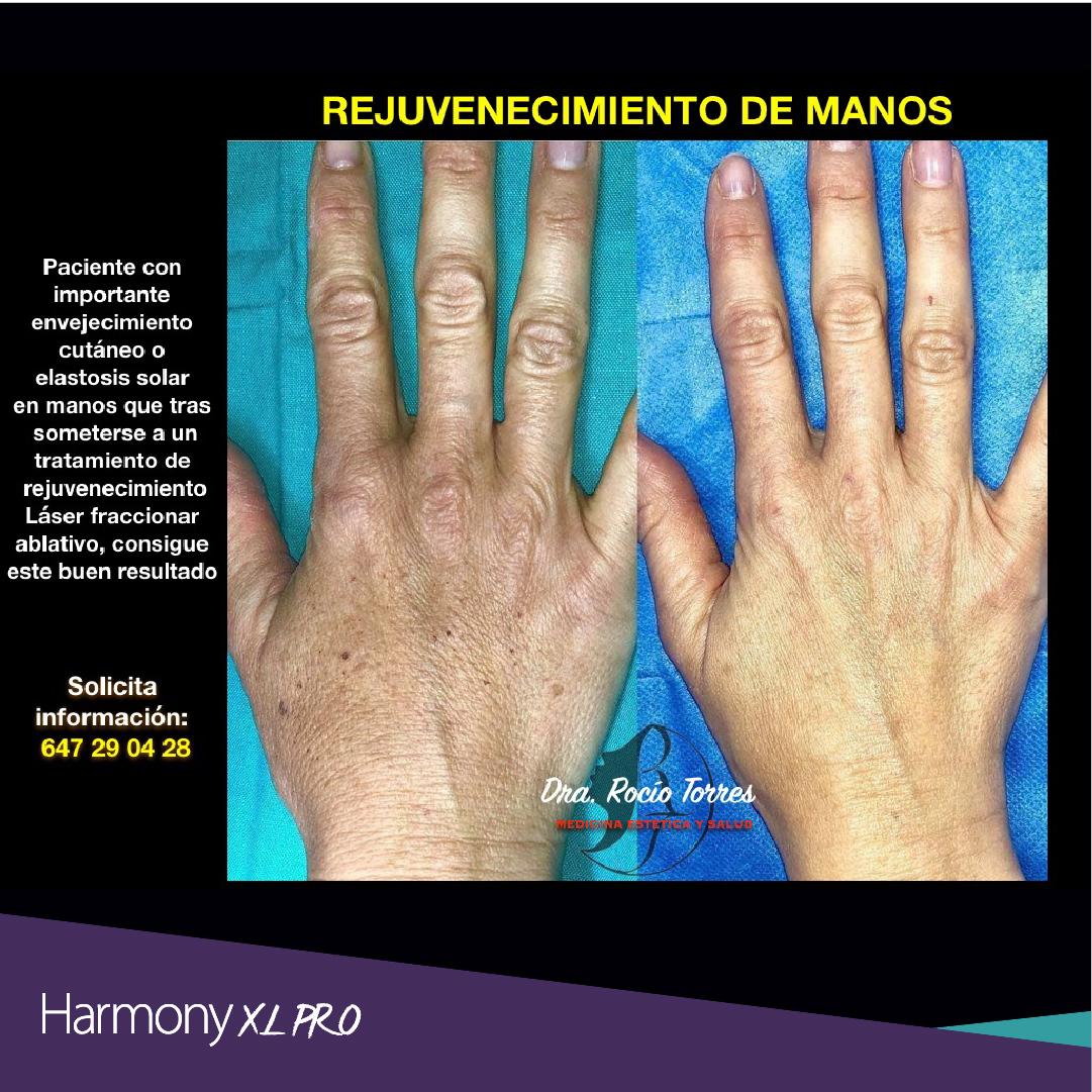 harmony xl pro y dra rocio torres-05