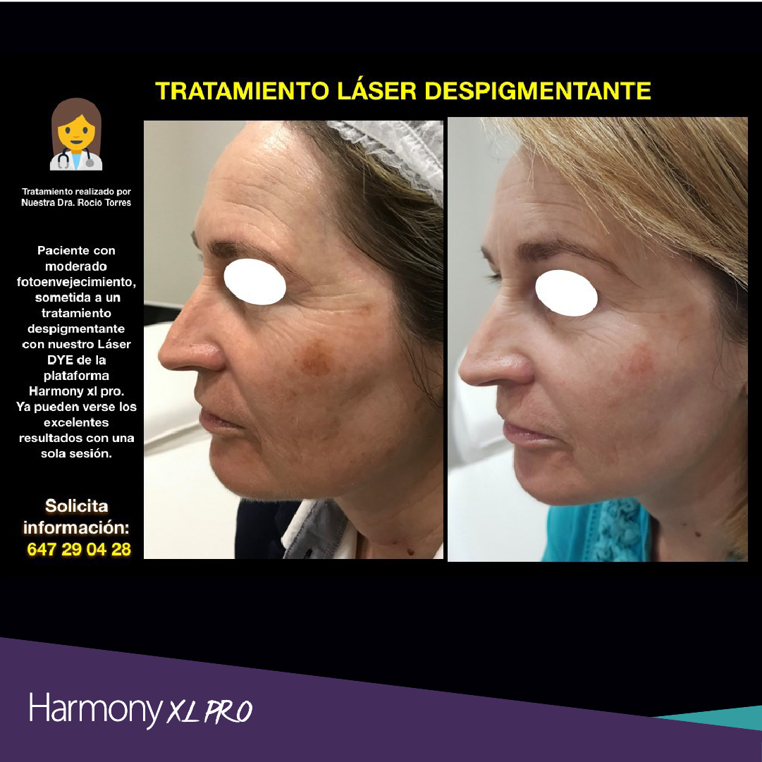 harmony xl pro y dra rocio torres-07
