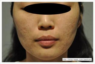 accent-prime-cicatrices-de-acne-antes-1