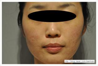 accent-prime-cicatrices-de-acne-despues-1