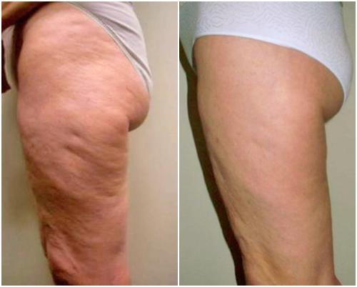 Antes y después tratamiento piernas y glúteos